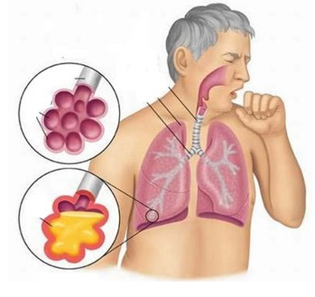 Khoa hô hấp