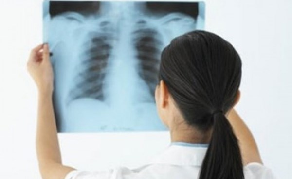 Chụp X - Quang phổi -2