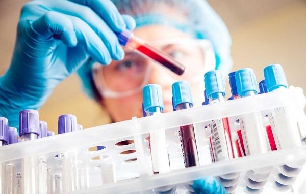 Xét nghiệm máu biết được những gì?