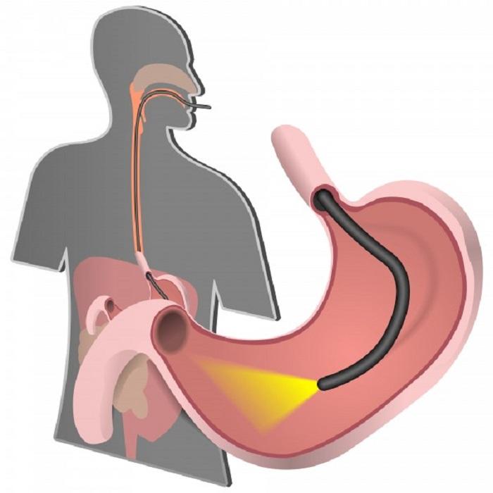Nội soi dạ dày gây mê - Phương pháp giúp xóa tan nỗi ám ảnh nội soi