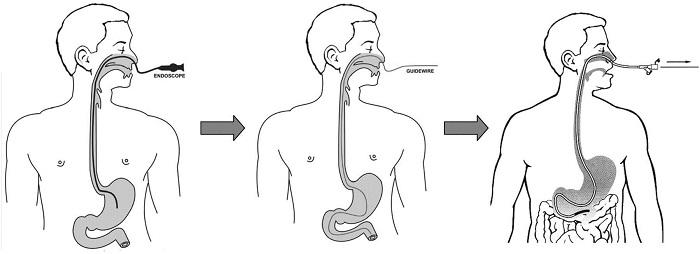 Nội soi dạ dày qua đường mũi