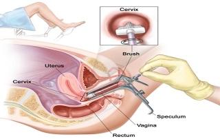 Nội soi tử cung là gì