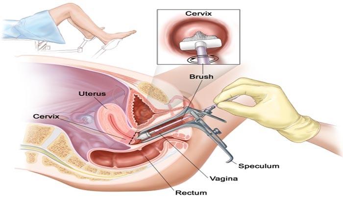 Mổ nội soi tử cung buồng trứng ảnh hưởng đến kinh nguyệt