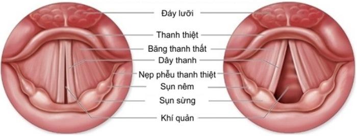 Kỹ thuật nội soi thanh quản ống mềm