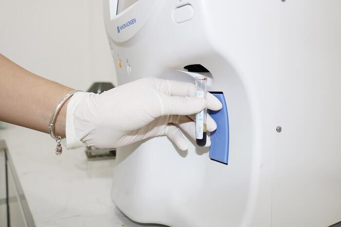 Xét nghiệm máu thực hiện trước khi mang thai