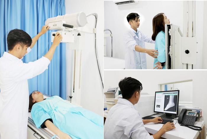 Bảng giá chụp X - quang CỤ THỂ, CHÍNH XÁC NHẤT hiện nay