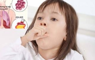 Viêm phổi nặng ở trẻ em