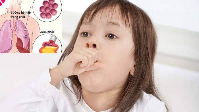 Viêm phổi nặng ở trẻ em -1