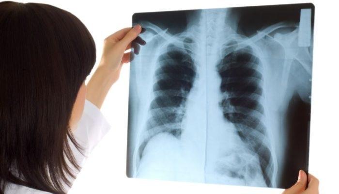 Những điều cần biết về chụp X quang tại Phòng khám Đa khoa