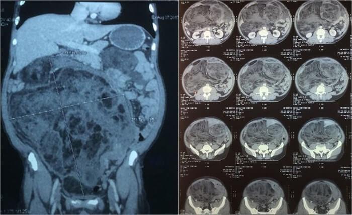 Chụp CT ở ổ bụng