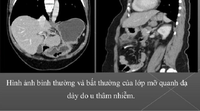 chụp CT dạ dày