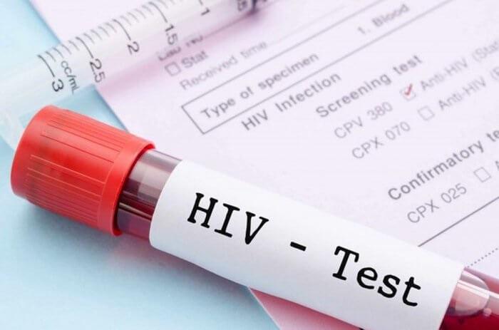 Lý do nên xét nghiệm HIV