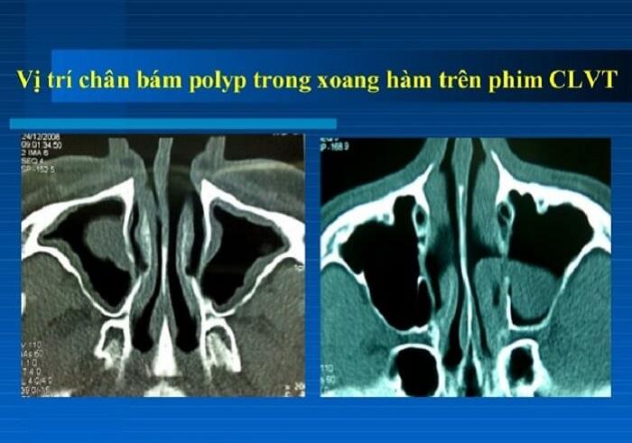Chụp CT xoang