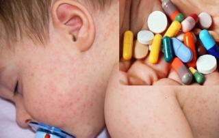 trẻ bị sốt phát ban uống thuốc gì