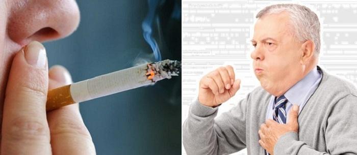 Tầm soát phát hiện ung thư phổi
