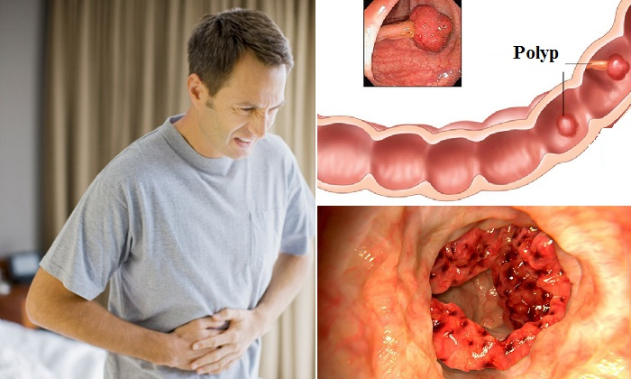Đau bụng tiêu chảy kéo dàido ung thư