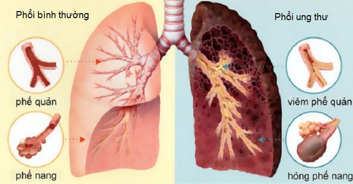tầm soát ung thư phổi ở đâu uy tín