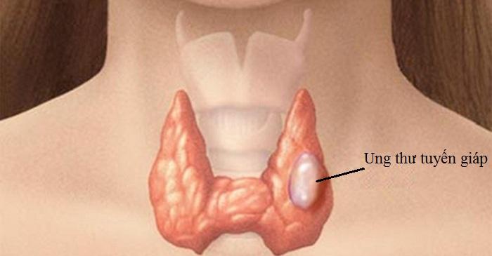 Các nguyên nhân thường gặp gây ung thư tuyến giáp