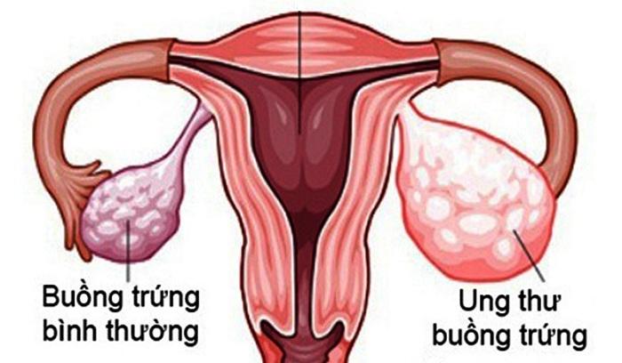Tầm soát ung thư buồng trứng - Ngăn ung thư ngay tức thì!!!