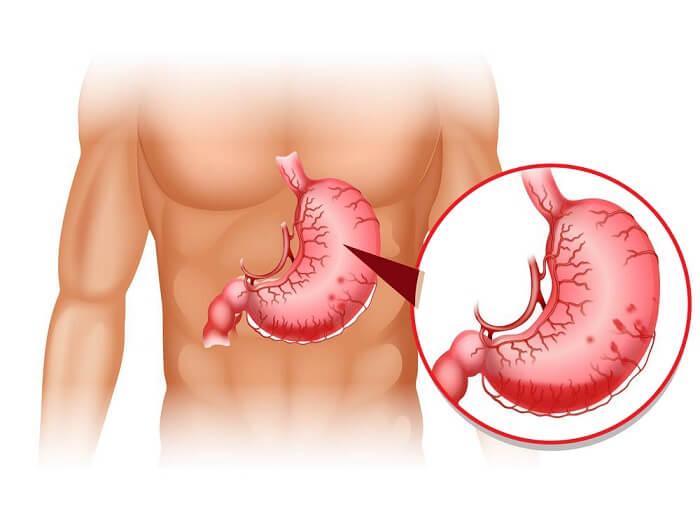 Nội soi dạ dày xong bị đau bụng