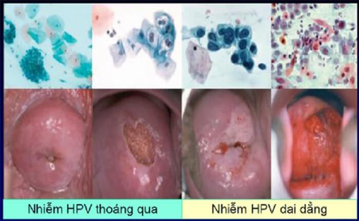 Xét nghiệm HPV chi phí hết bao nhiêu tiền?