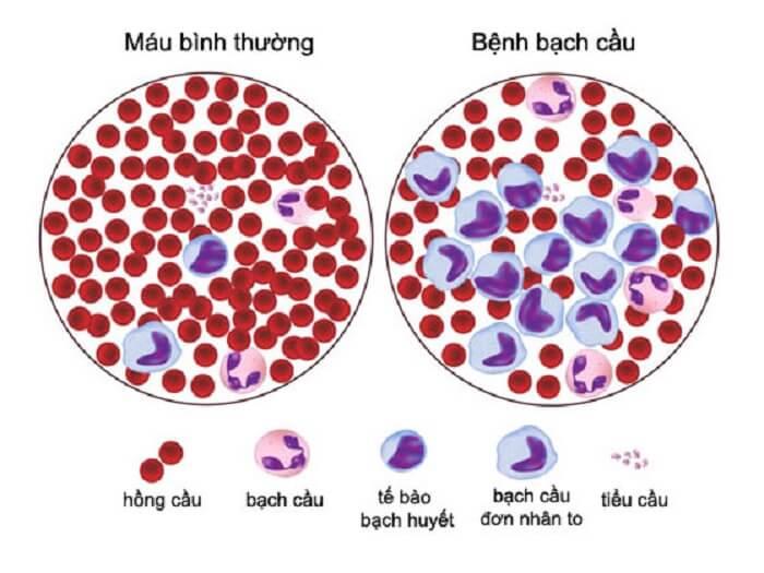 Chỉ số xét nghiệm máu Wbc có ý nghĩa gì?