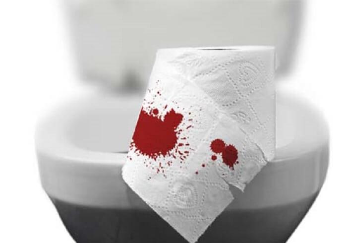 Đi ngoài ra máu và chất nhầy
