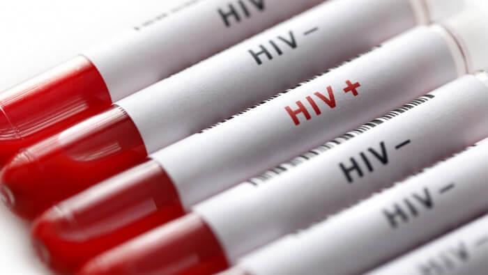 Xét nghiệm HIV dương tính giả
