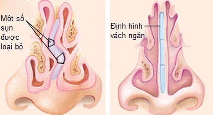 lệch vách ngăn mũi -3
