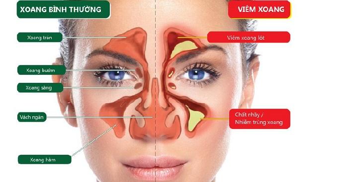 Viêm mũi dị ứng -2